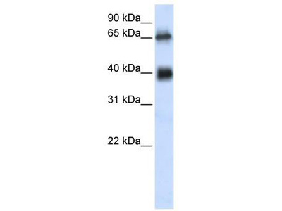 Rabbit Polyclonal Anti-C6orf113 Antibody