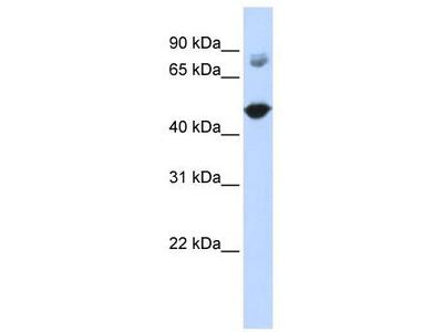Rabbit Polyclonal Anti-TBC1D16 Antibody