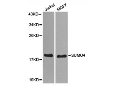 SUMO4 Rabbit Polyclonal Antibody