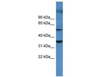 Rabbit Polyclonal Anti-CYP11B1 Antibody