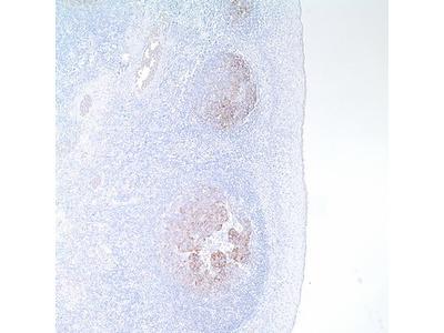 Mouse Monoclonal CD21 Antibody