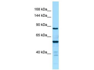 Rabbit Polyclonal Anti-CTDP1 Antibody