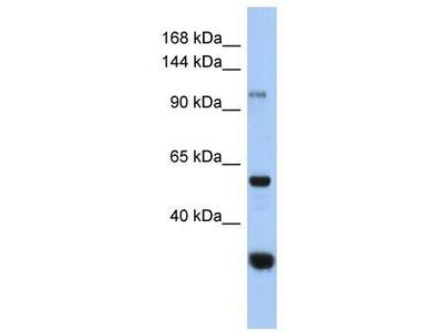 Rabbit Polyclonal Anti-GANC Antibody