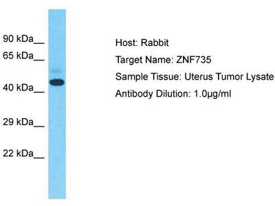 Rabbit Polyclonal Anti-ZNF735 Antibody