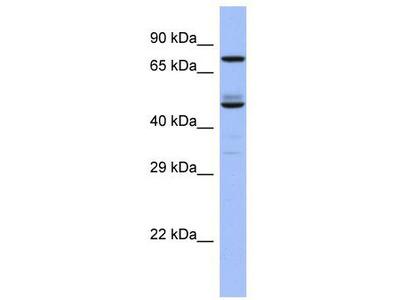 Rabbit Polyclonal Anti-TBC1D25 Antibody
