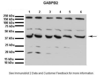 Rabbit Polyclonal Anti-GABPB1 Antibody