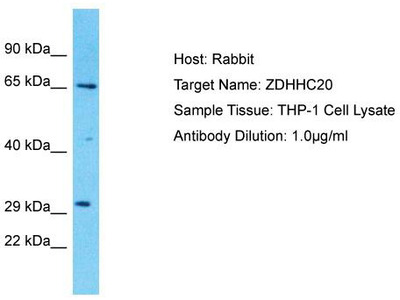 Rabbit Polyclonal Anti-ZDHHC20 Antibody