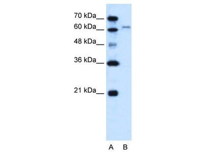 Rabbit Polyclonal Anti-SLC15A4 Antibody