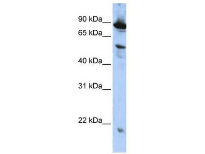 Rabbit Polyclonal anti-ZGPAT antibody