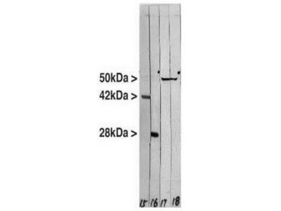 Mouse Monoclonal Vimentin Antibody (2A52)