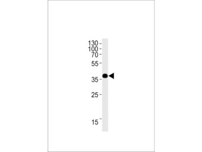 Rabbit polyclonal anti-OR1L3 antibody (C-term)