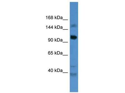 Rabbit Polyclonal Anti-CCDC87 Antibody - C-terminal region