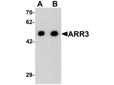 Rabbit Polyclonal ARR3 Antibody