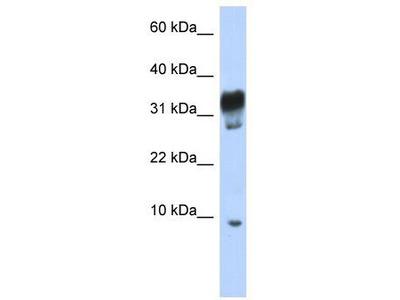 Rabbit polyclonal Anti-PXT1 Antibody
