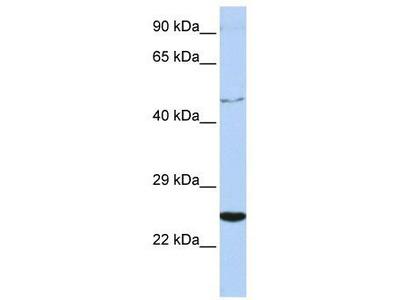 Rabbit Polyclonal Anti-CRLF1 Antibody