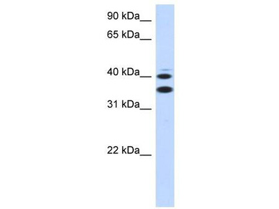 Rabbit Polyclonal Anti-SLC25A32 Antibody
