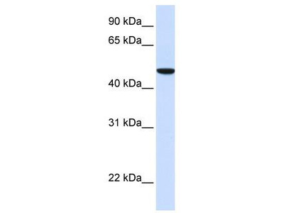 Rabbit Polyclonal Anti-SLC2A6 Antibody