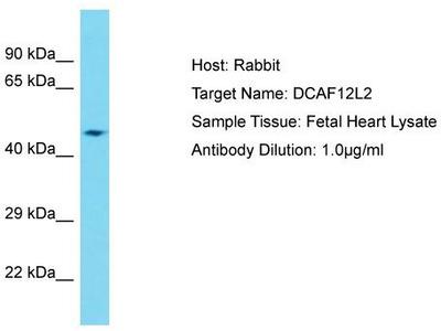 Rabbit Polyclonal Anti-DCAF12L2 Antibody