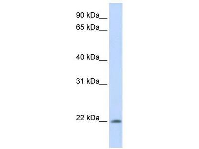 Rabbit Polyclonal anti-C2orf28 antibody