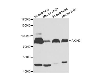 Rabbit anti-AXIN2 Polyclonal Antibody
