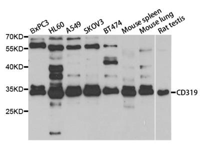 Rabbit anti-SLAMF7 Polyclonal Antibody