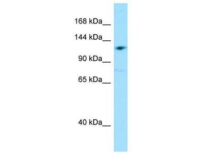 Rabbit Polyclonal Anti-GRID2IP Antibody