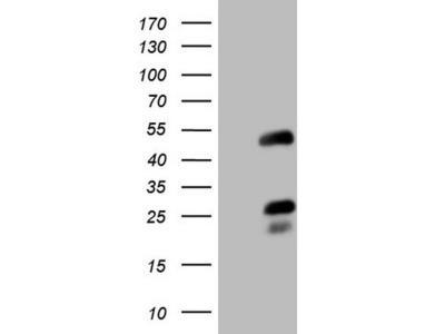 NR2F6 mouse monoclonal antibody, clone OTI2C9 (formerly 2C9)