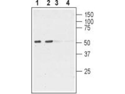 Rabbit Polyclonal Anti-Nicotinic Acetylcholine Receptor Alpha6 (extracellular)