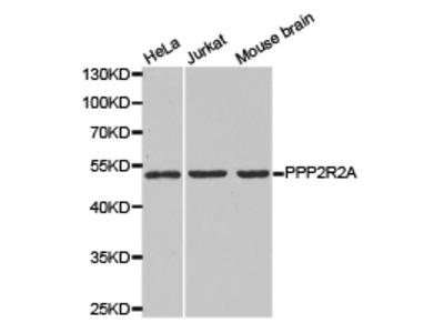 Rabbit anti-PPP2R2A Polyclonal Antibody