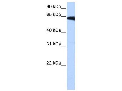 Rabbit polyclonal Anti-PIGW Antibody