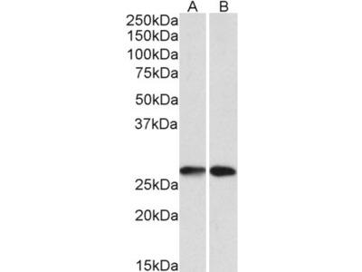 Goat Anti-NNMT Polyclonal Antibody
