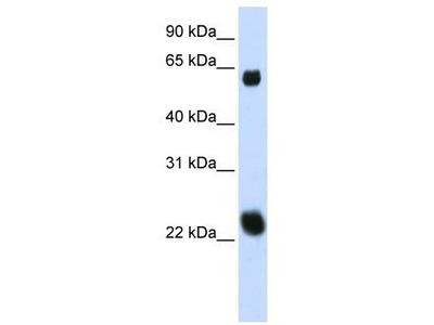 Rabbit Polyclonal Anti-KLHL26 Antibody