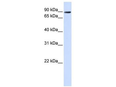 Rabbit Polyclonal Anti-TMEM16K Antibody