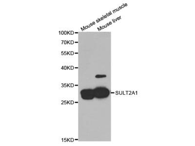 Rabbit anti-SULT2A1 Polyclonal Antibody
