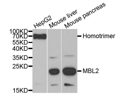 Rabbit anti-MBL2 Polyclonal Antibody
