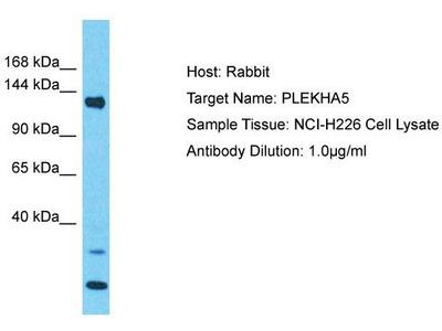 Rabbit Polyclonal Anti-PLEKHA5 Antibody