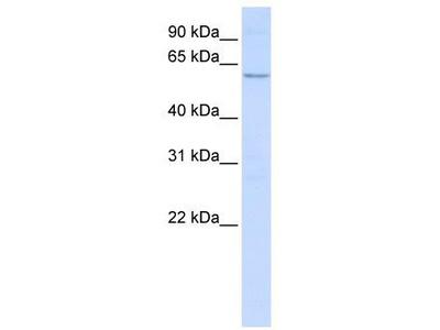 Rabbit Polyclonal Anti-NETO2 Antibody