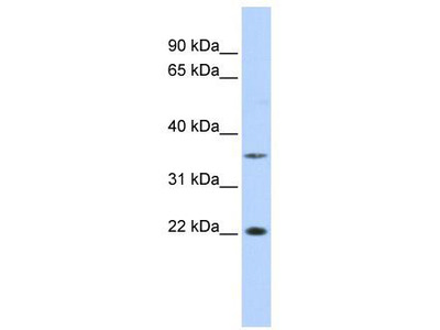 Rabbit Polyclonal Anti-C16orf80 Antibody