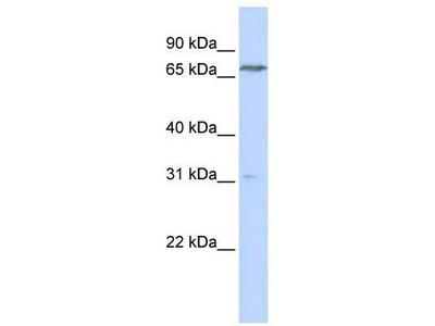 Rabbit Polyclonal Anti-PCCA Antibody