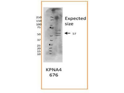 Rabbit Polyclonal Anti-KPNA4 Antibody