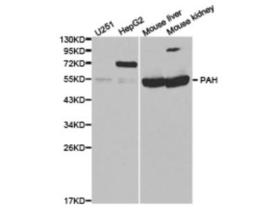 PAH Rabbit Polyclonal Antibody