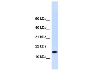 Rabbit Polyclonal Anti-PHLDA3 Antibody