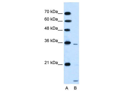 Rabbit Polyclonal Anti-SLC25A39 Antibody