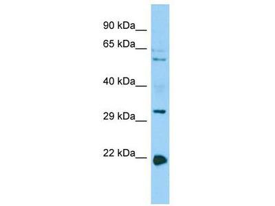 Rabbit Polyclonal Anti-CORO1B Antibody