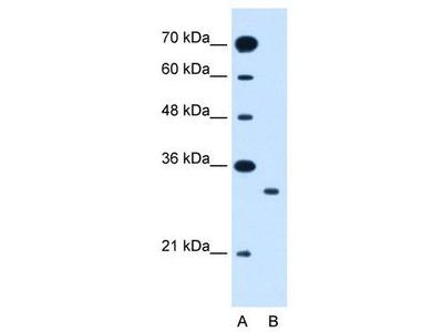 Rabbit Polyclonal Anti-SLC25A22 Antibody