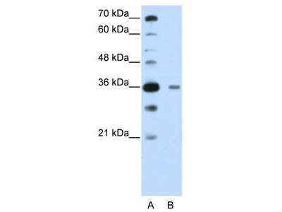 Rabbit Polyclonal Anti-DAZAP1 Antibody