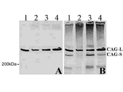 Mouse Monoclonal Huntingtin Antibody (1A771)