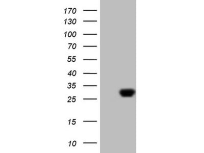 EXOSC1 mouse monoclonal antibody, clone OTI1H8 (formerly 1H8)