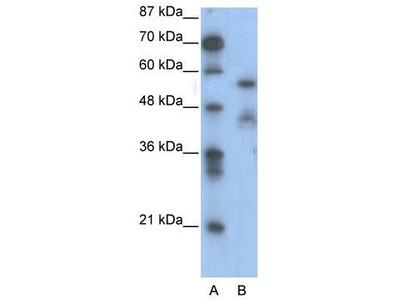 Rabbit Polyclonal Anti-NFIA Antibody