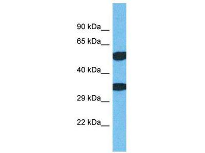 Rabbit Polyclonal Anti-TMEM68 Antibody